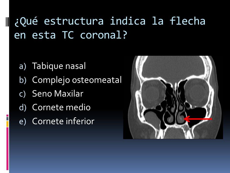 ¿Qué estructura indica la flecha en esta TC coronal