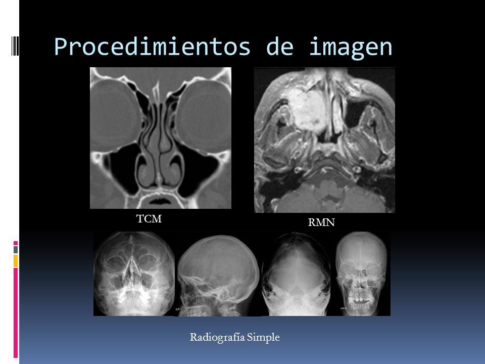 Procedimientos de imagen