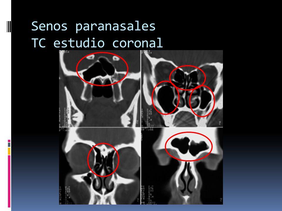 Senos paranasales TC estudio coronal