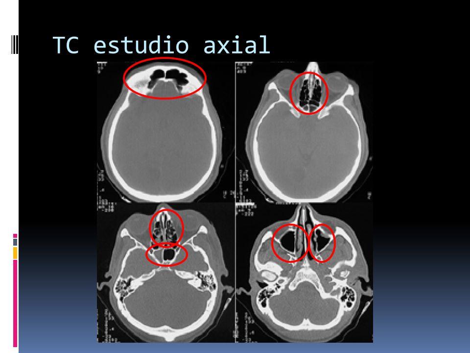 TC estudio axial Senos frontales Celdillas etmoidales