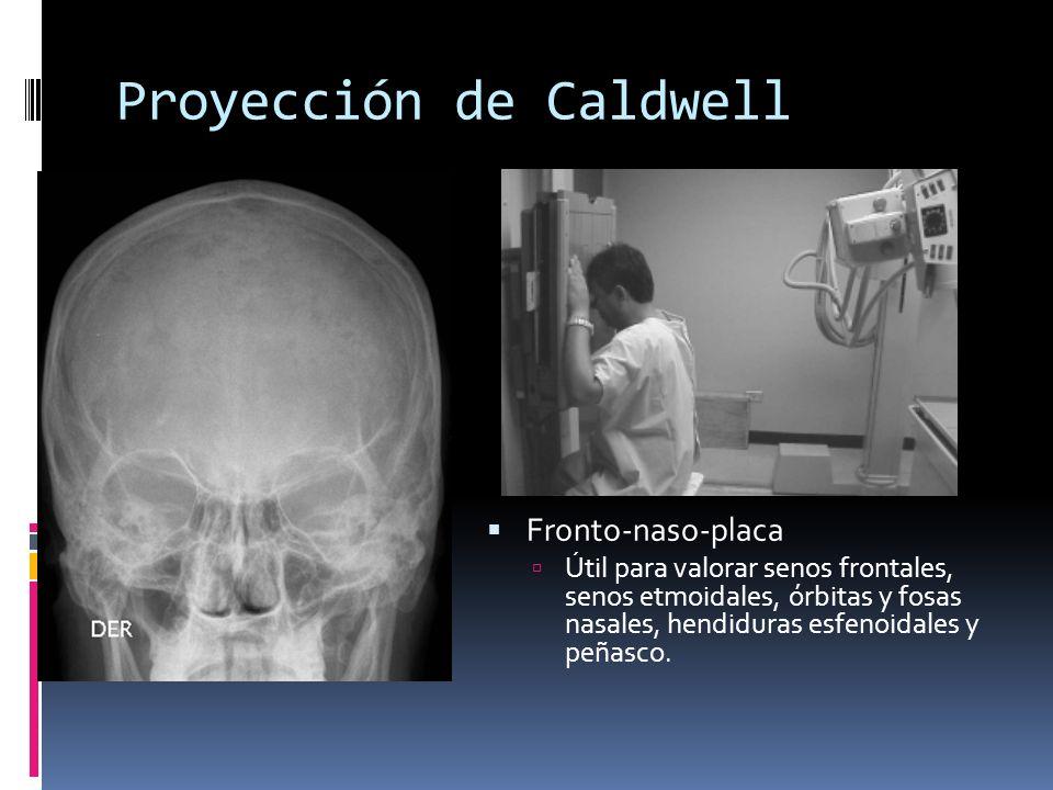 Proyección de Caldwell