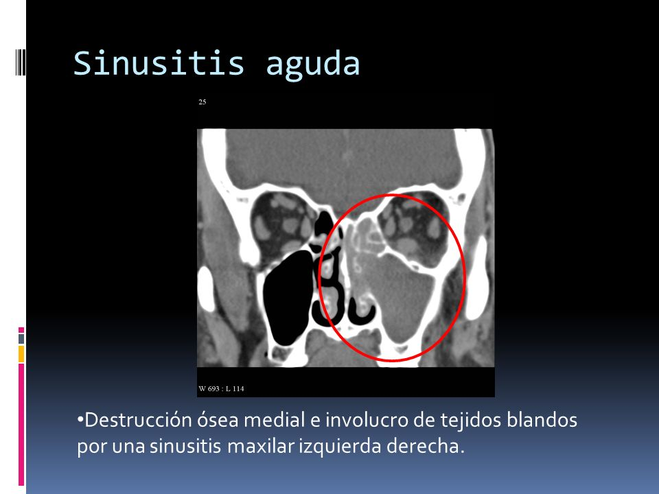 Sinusitis aguda TAC:
