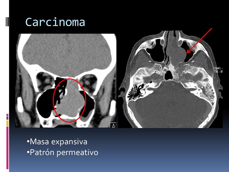 Carcinoma Masa expansiva Patrón permeativo