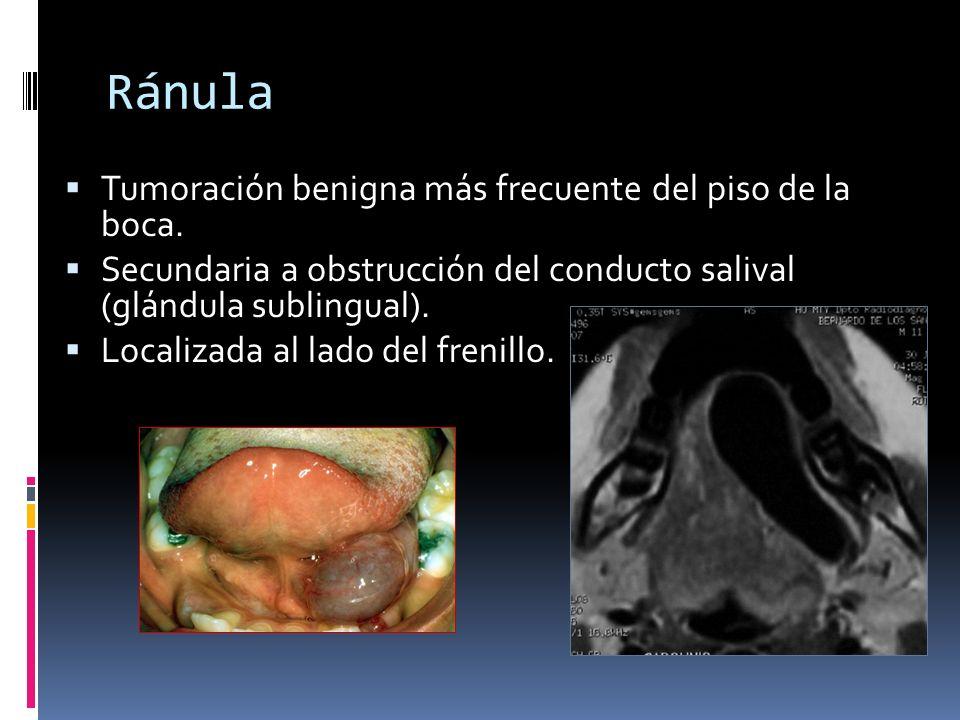 Ránula Tumoración benigna más frecuente del piso de la boca.