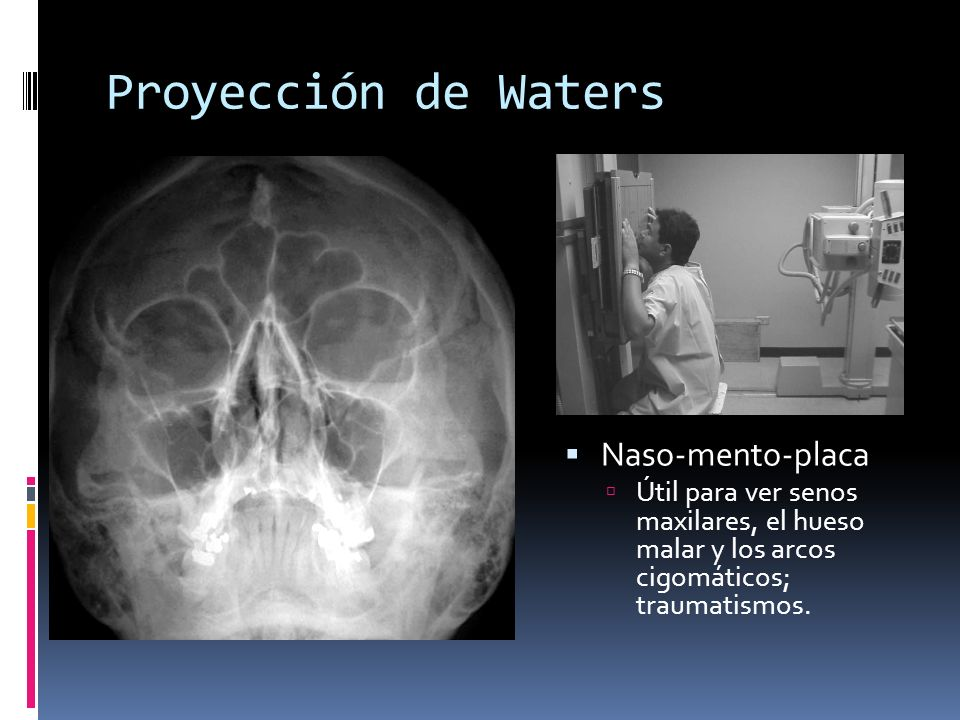 Proyección de Waters Naso-mento-placa