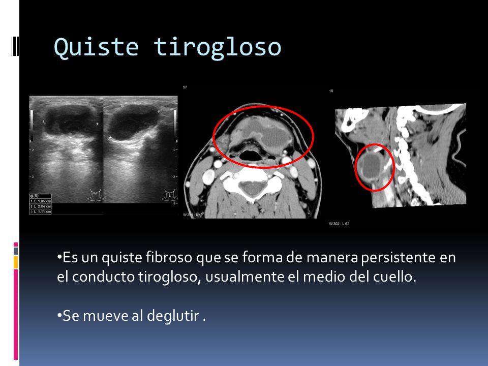 Quiste tirogloso thyroglossal duct cyst.