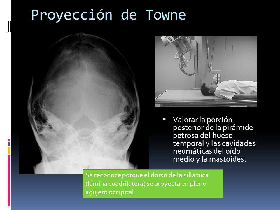 Proyección de Towne