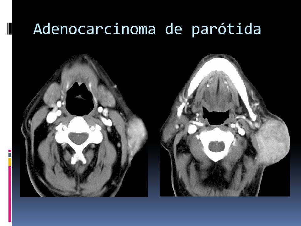 Adenocarcinoma de parótida