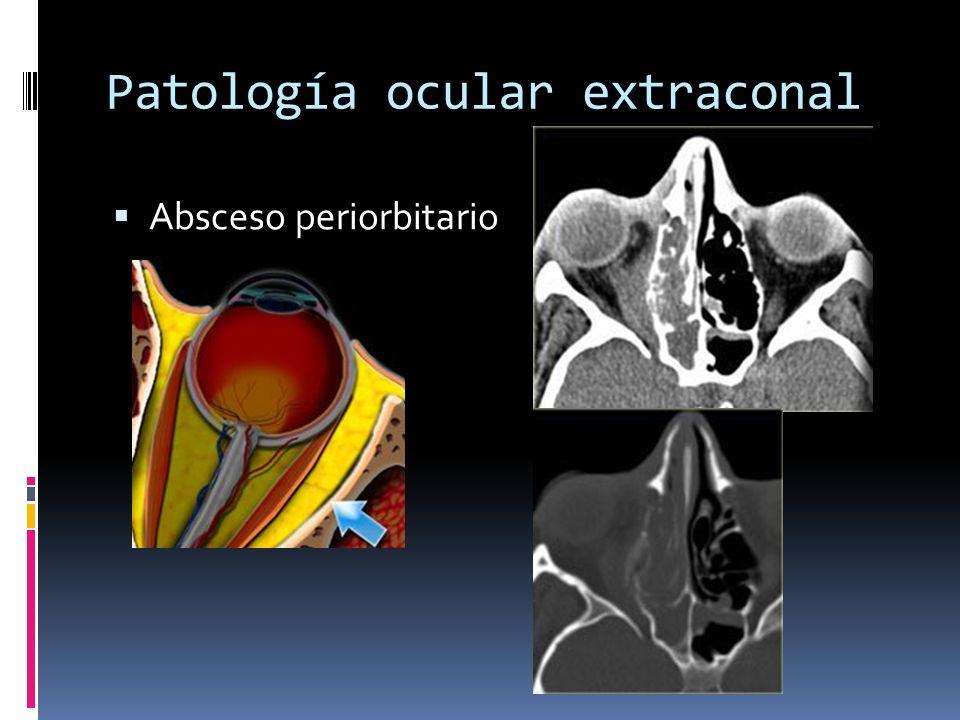 Patología ocular extraconal