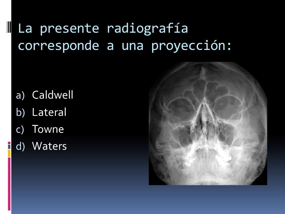 La presente radiografía corresponde a una proyección: