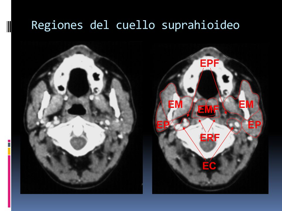 Regiones del cuello suprahioideo