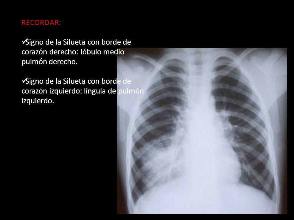 RECORDAR: Signo de la Silueta con borde de corazón derecho: lóbulo medio pulmón derecho.