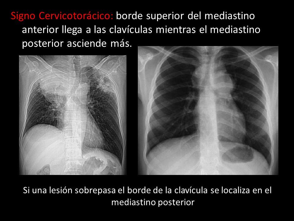 Signo Cervicotorácico: borde superior del mediastino anterior llega a las clavículas mientras el mediastino posterior asciende más.