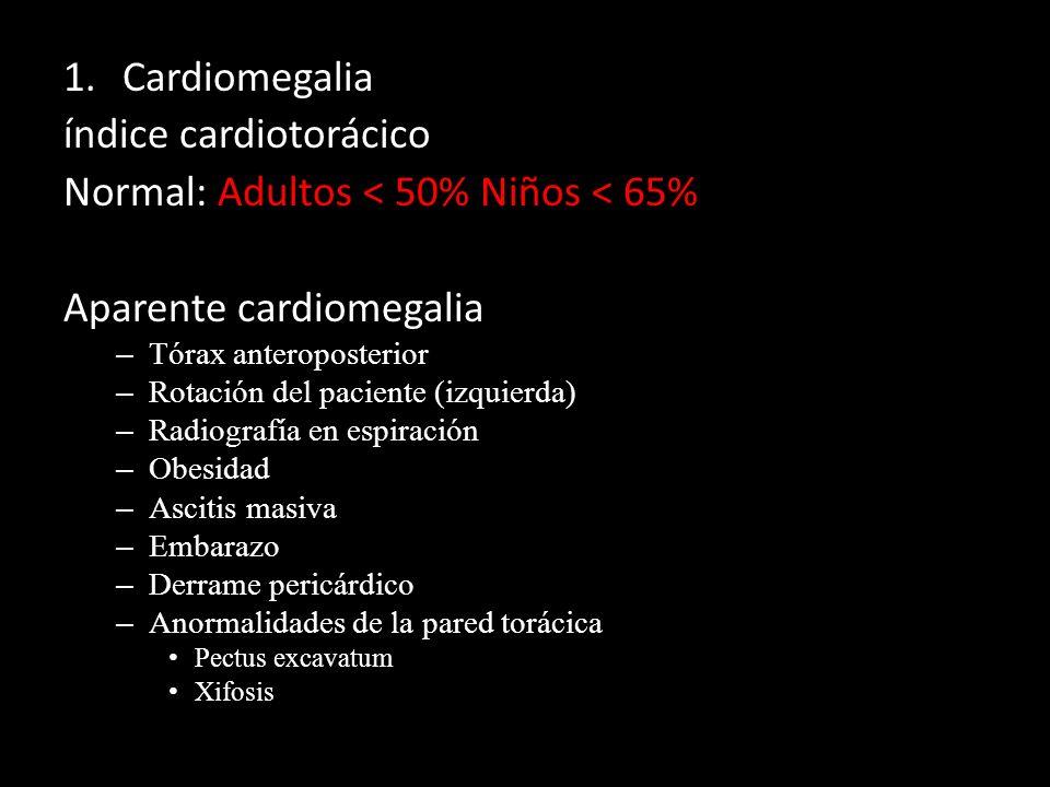 índice cardiotorácico Normal: Adultos < 50% Niños < 65%