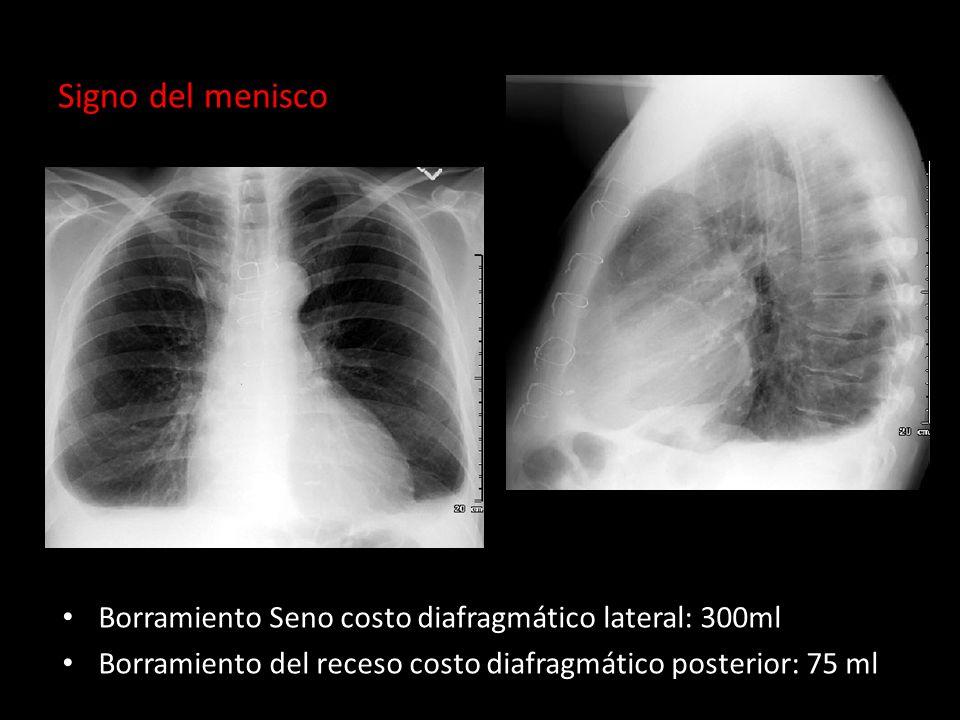 Signo del menisco Borramiento Seno costo diafragmático lateral: 300ml