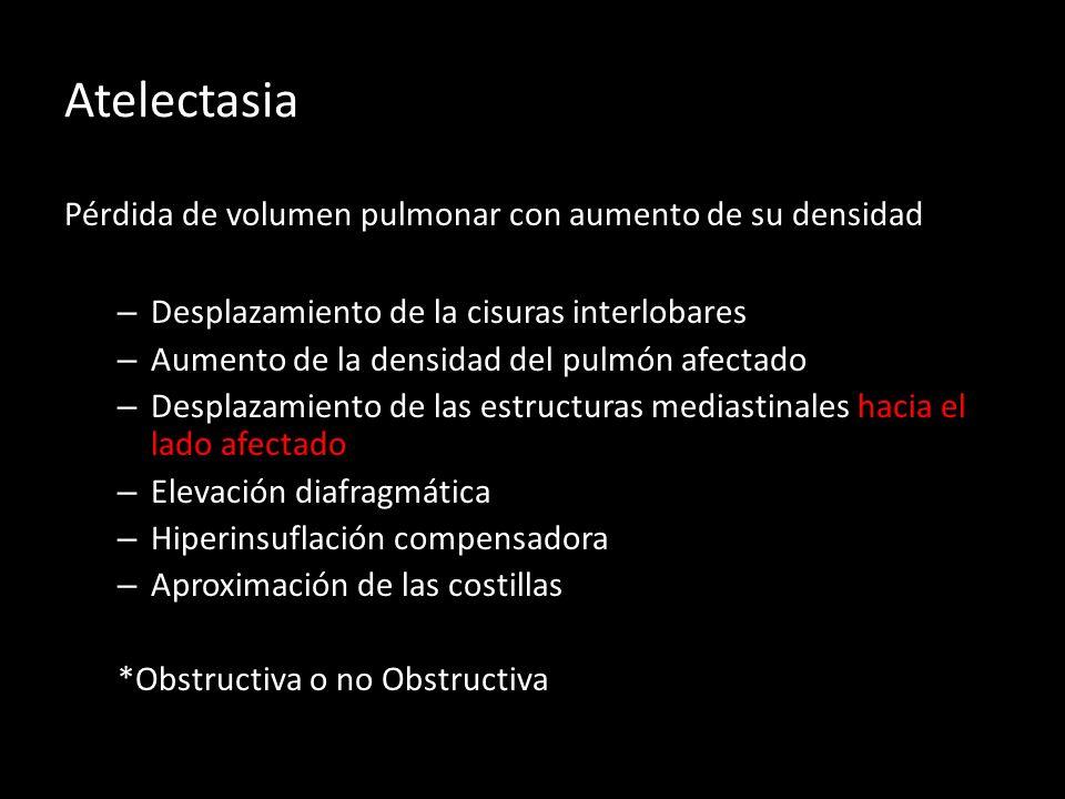 Atelectasia Pérdida de volumen pulmonar con aumento de su densidad
