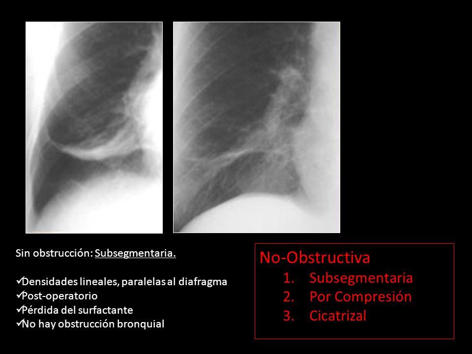 No-Obstructiva Subsegmentaria Por Compresión Cicatrizal