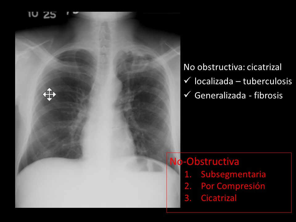 No-Obstructiva No obstructiva: cicatrizal localizada – tuberculosis
