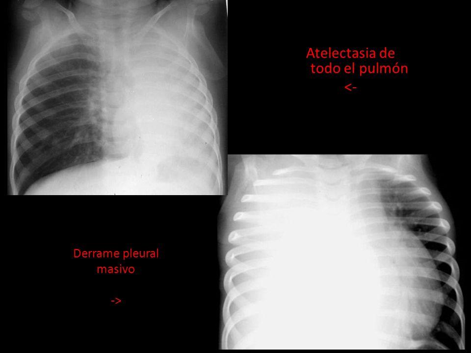 Atelectasia de todo el pulmón <-