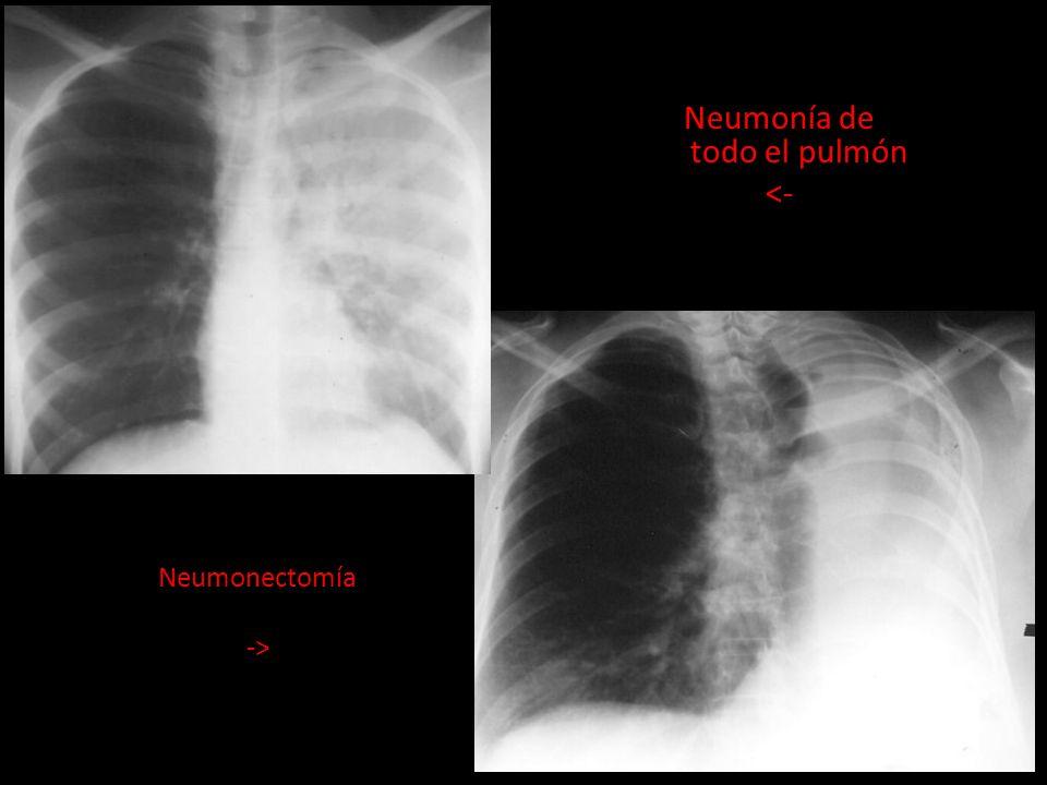 Neumonía de todo el pulmón
