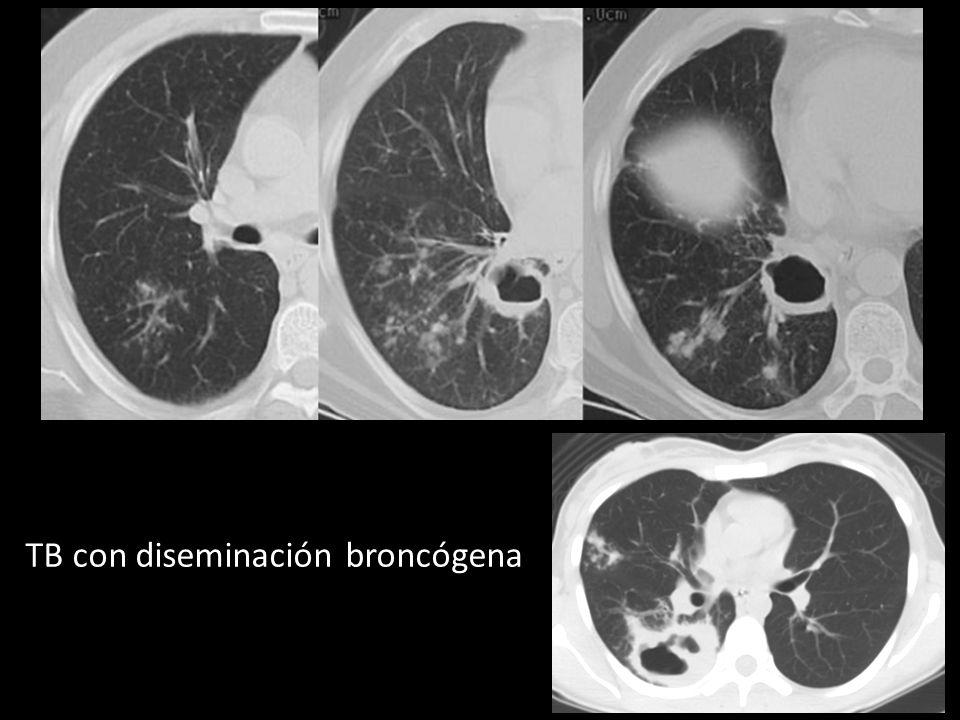 TB con diseminación broncógena