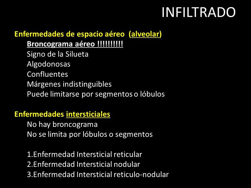 INFILTRADO Enfermedades de espacio aéreo (alveolar)