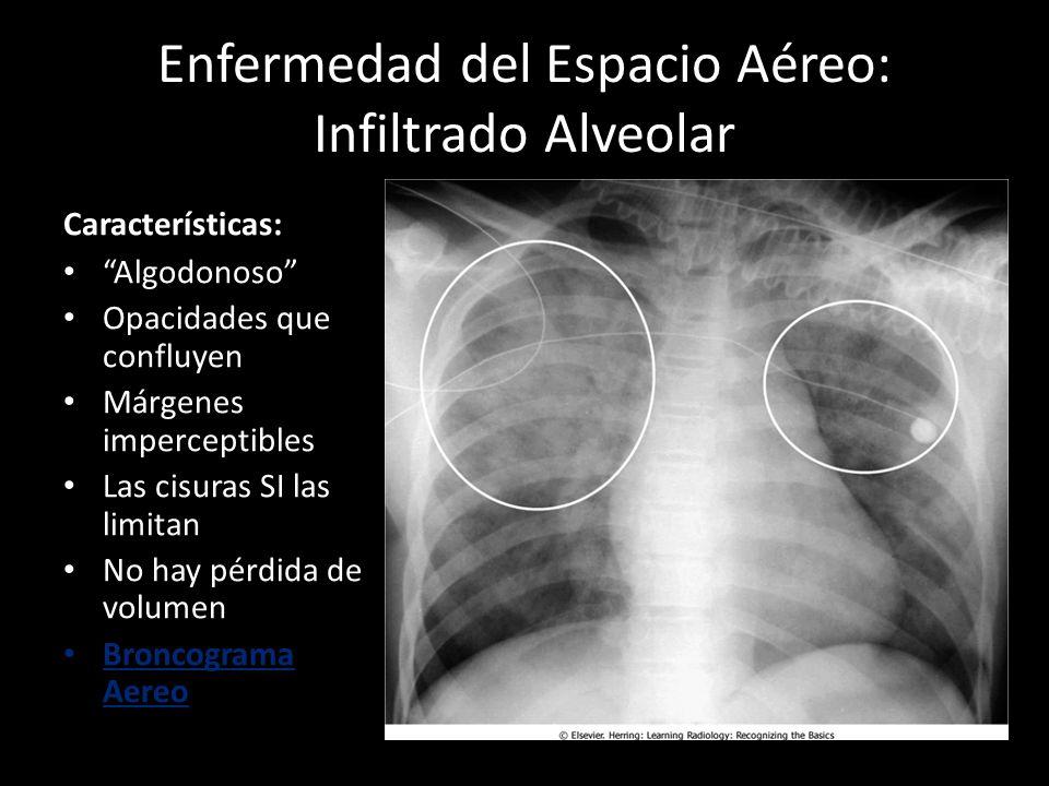 Enfermedad del Espacio Aéreo: Infiltrado Alveolar