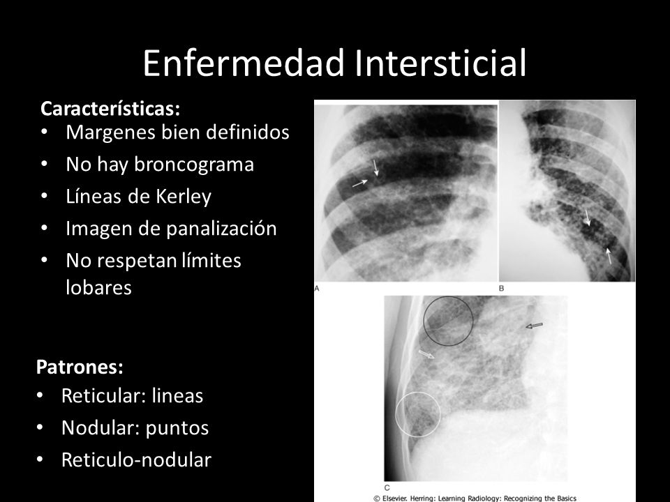 Enfermedad Intersticial