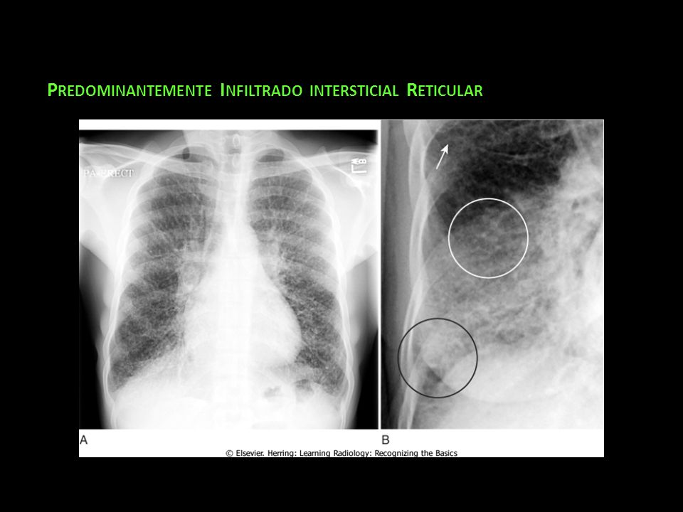 Predominantemente Infiltrado intersticial Reticular