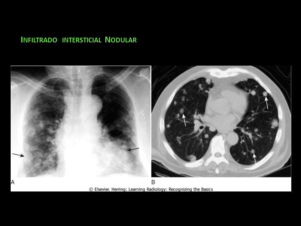 Infiltrado intersticial Nodular