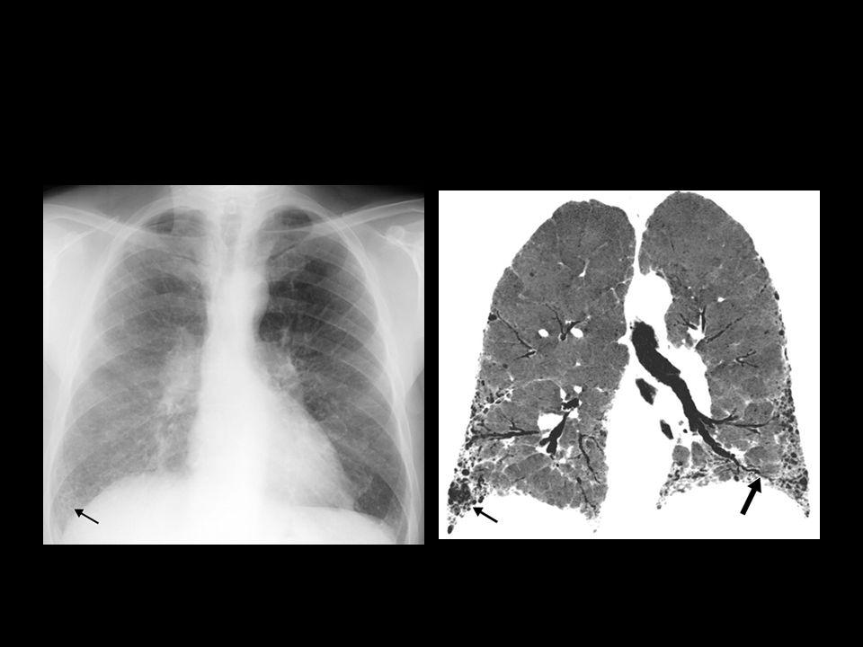 FPI con patrón típico. A) Radiografía de tórax posteroanterior: quistes de panal en base derecha (flecha).