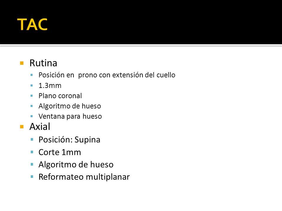 TAC Rutina Axial Posición: Supina Corte 1mm Reformateo multiplanar