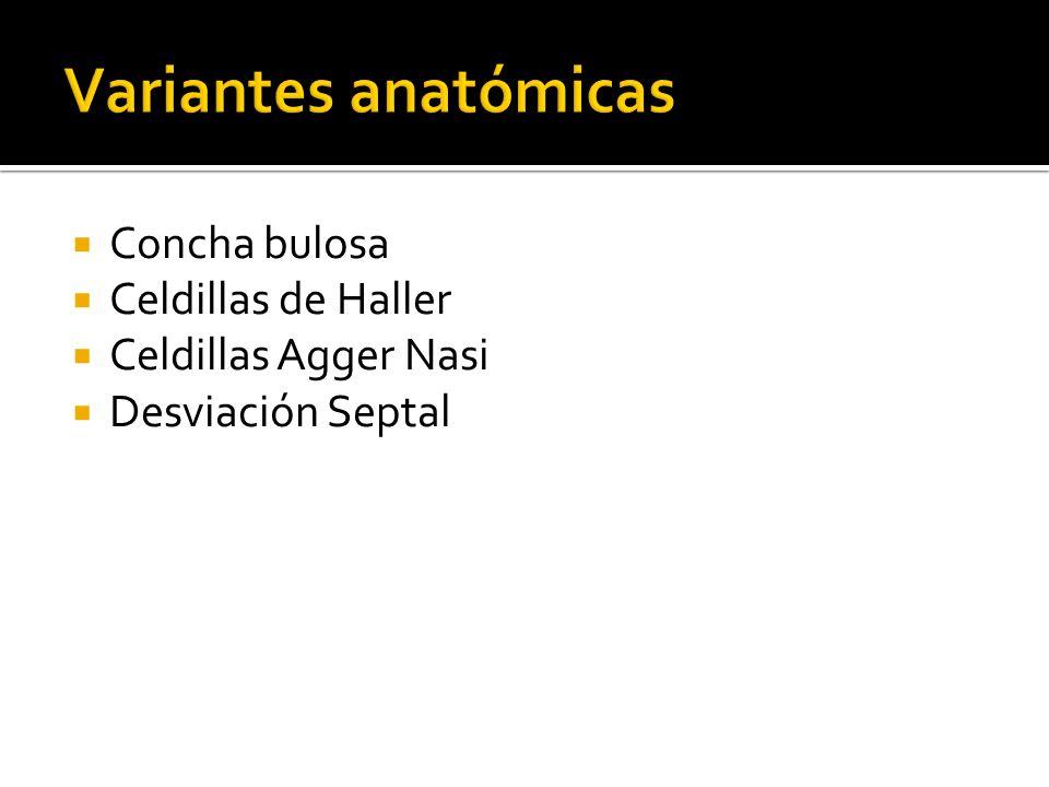 Variantes anatómicas Concha bulosa Celdillas de Haller