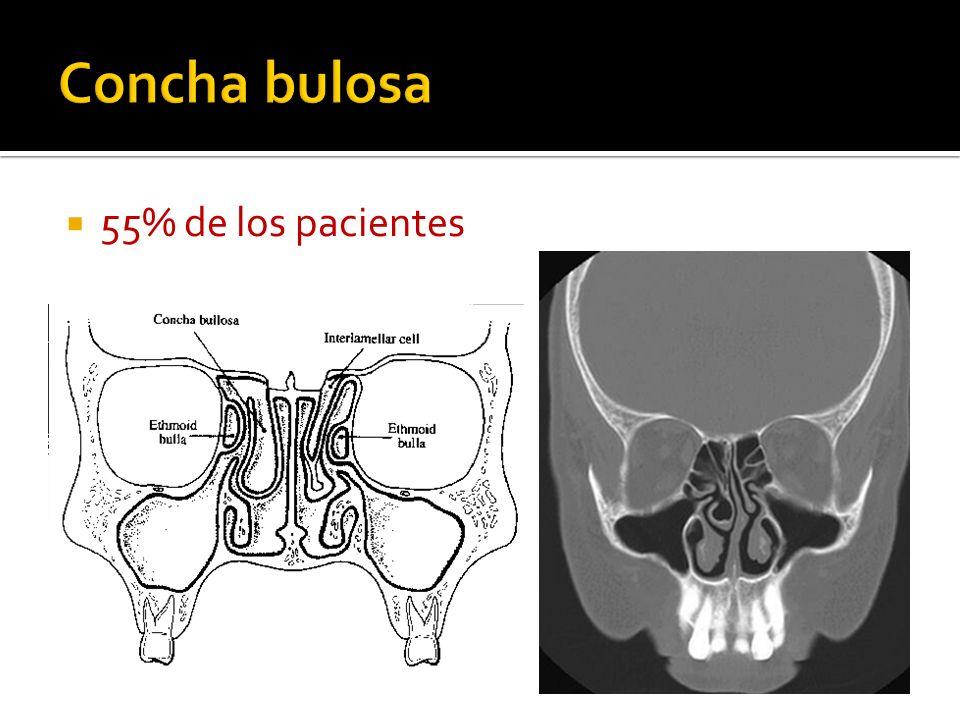 Concha bulosa 55% de los pacientes