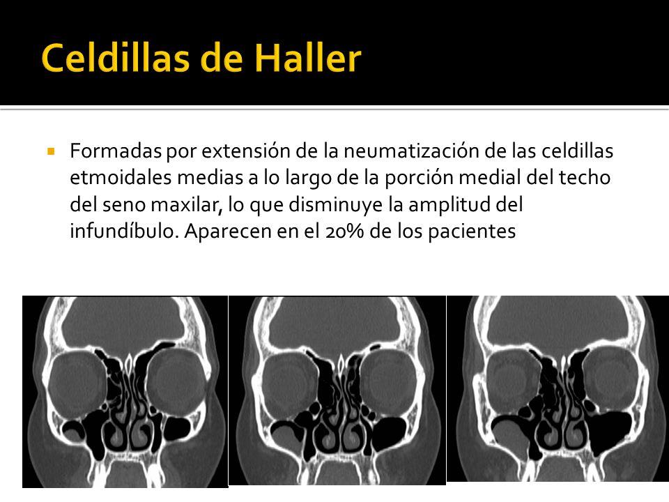Celdillas de Haller