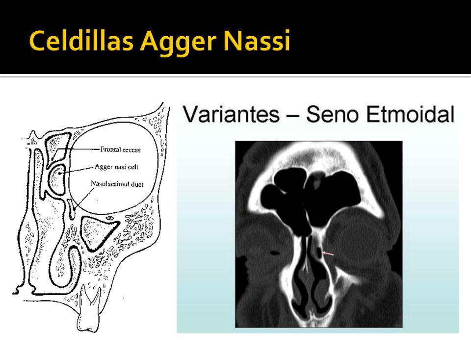 Celdillas Agger Nassi