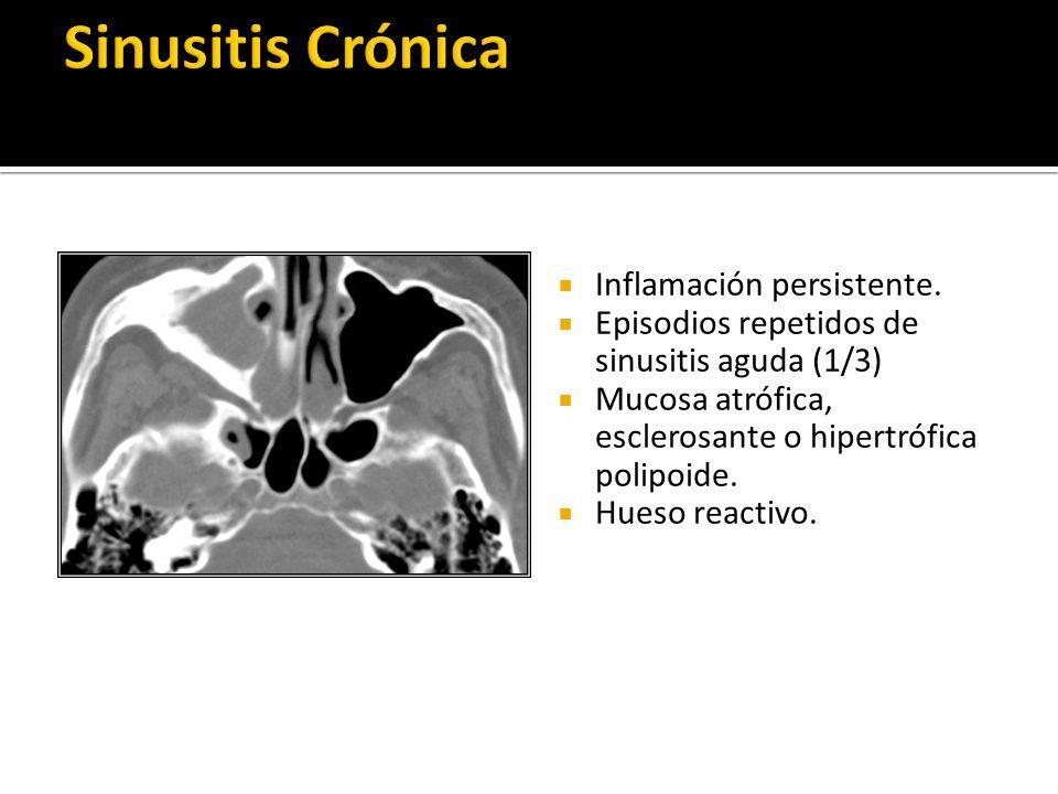 Sinusitis Crónica Inflamación persistente.
