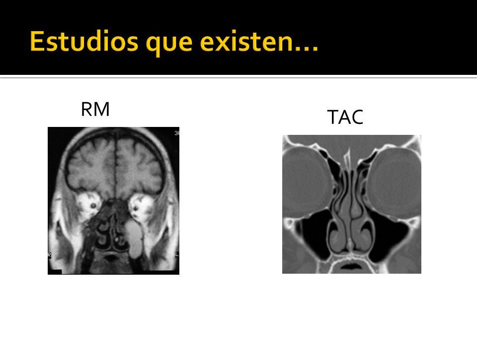 Estudios que existen… RM TAC
