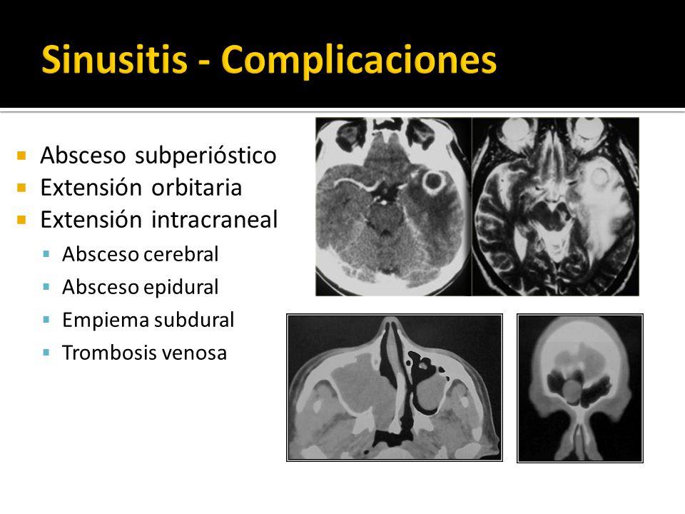 Sinusitis - Complicaciones