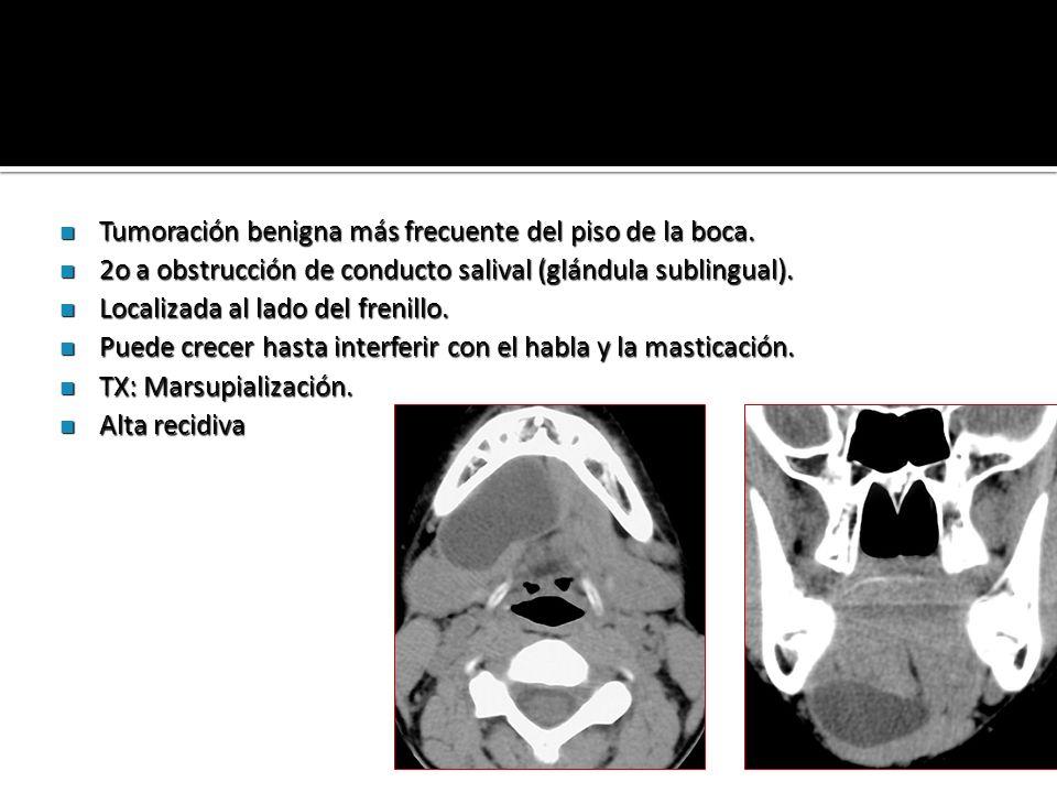 Tumoración benigna más frecuente del piso de la boca.