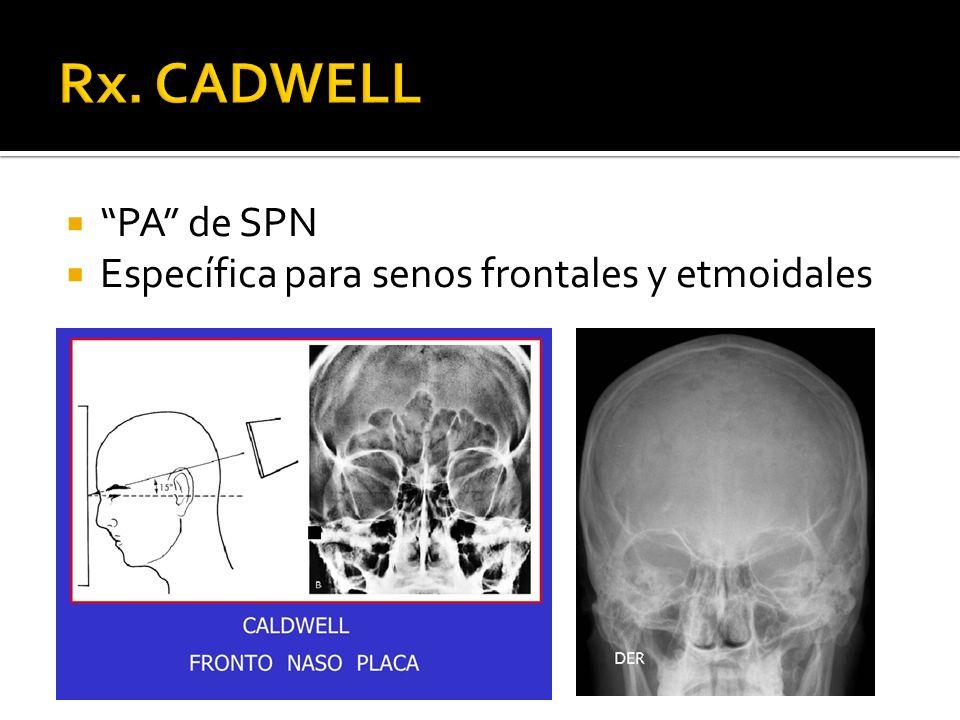 Rx. CADWELL PA de SPN Específica para senos frontales y etmoidales