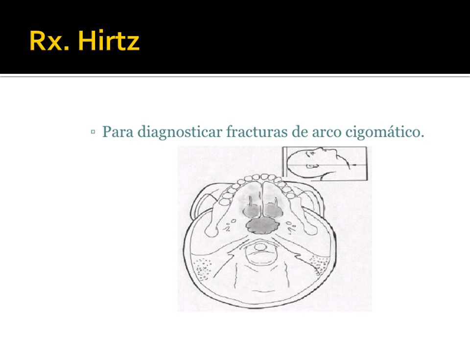 Rx. Hirtz
