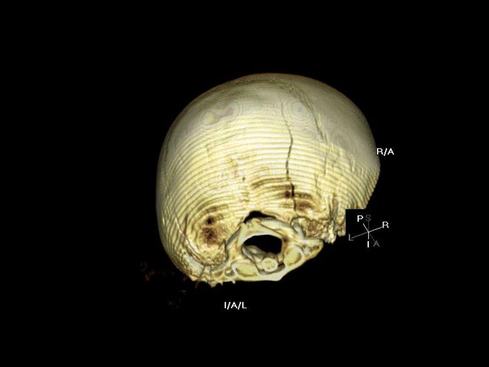 Recontruccion en 3D de un craneo en el que se puede observar una fractura en la parte lateral del hueso occipital