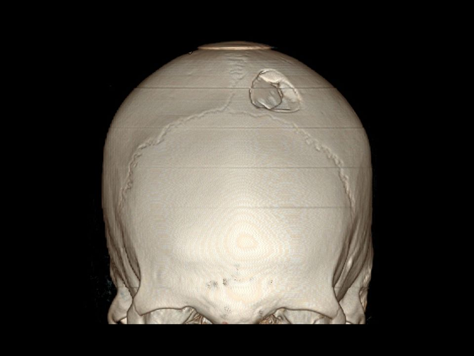 Depressed left parietal bone fracture.