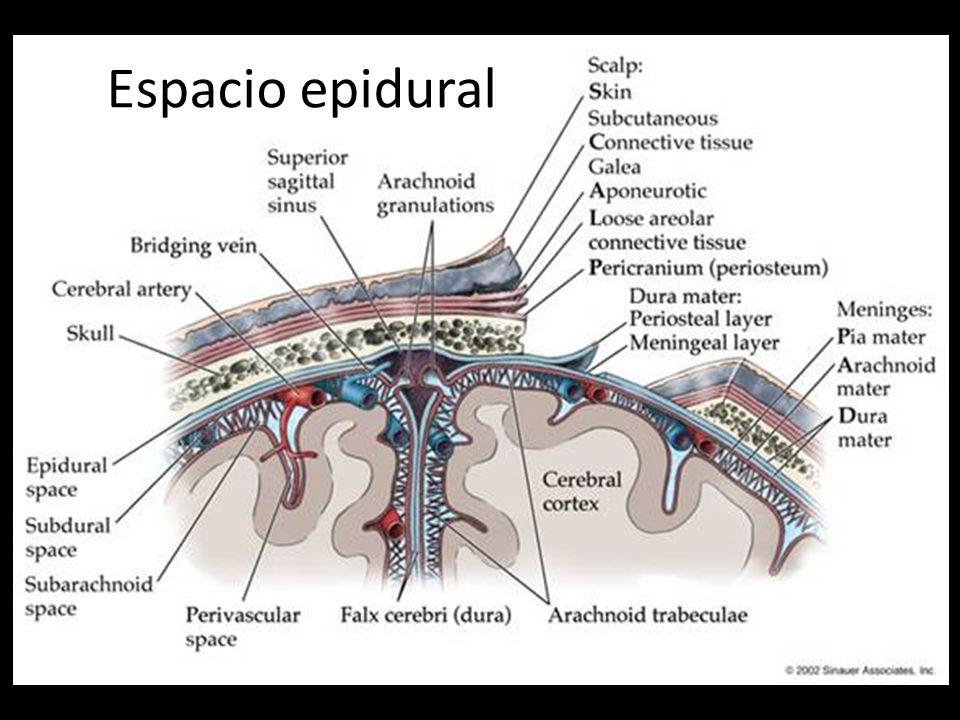 Espacio epidural Hemorragia extradural