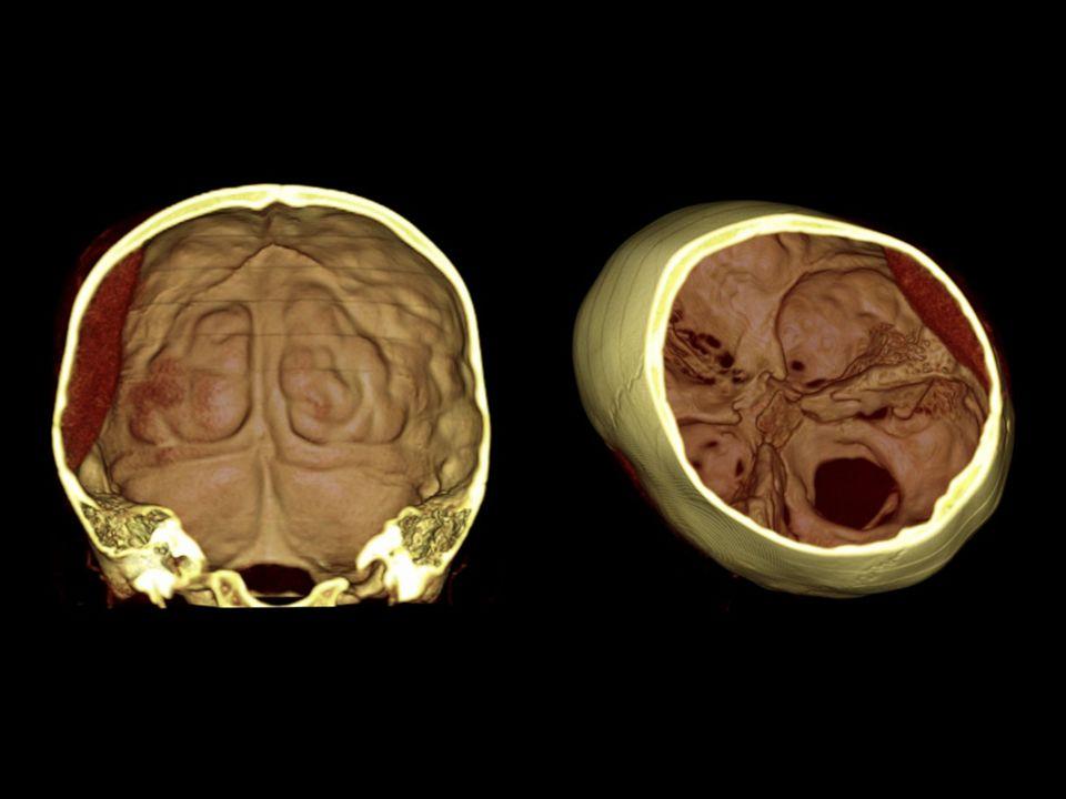 Hemorragia epidural, delimitada por las cisuras.