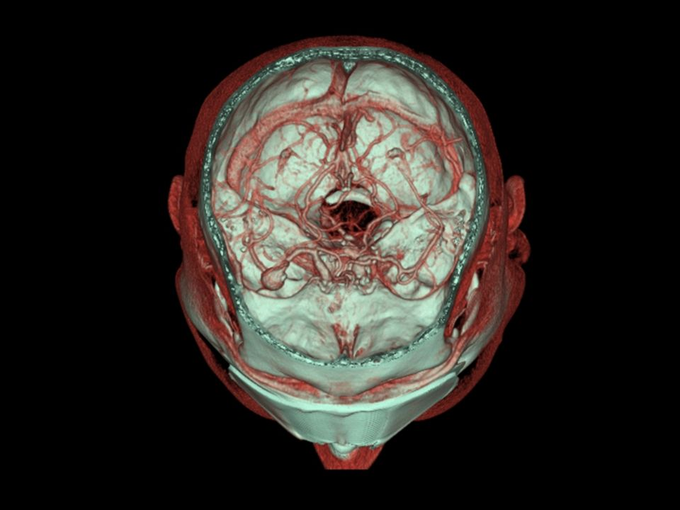 Cerebral aneurysms location: anterior circulation: ~ 90%