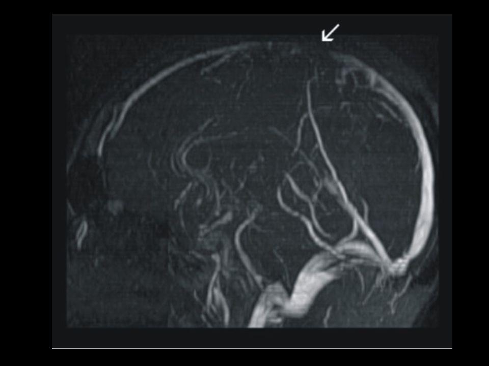mastoiditis dehydration pregnancy tumours trauma hypercoagulable states
