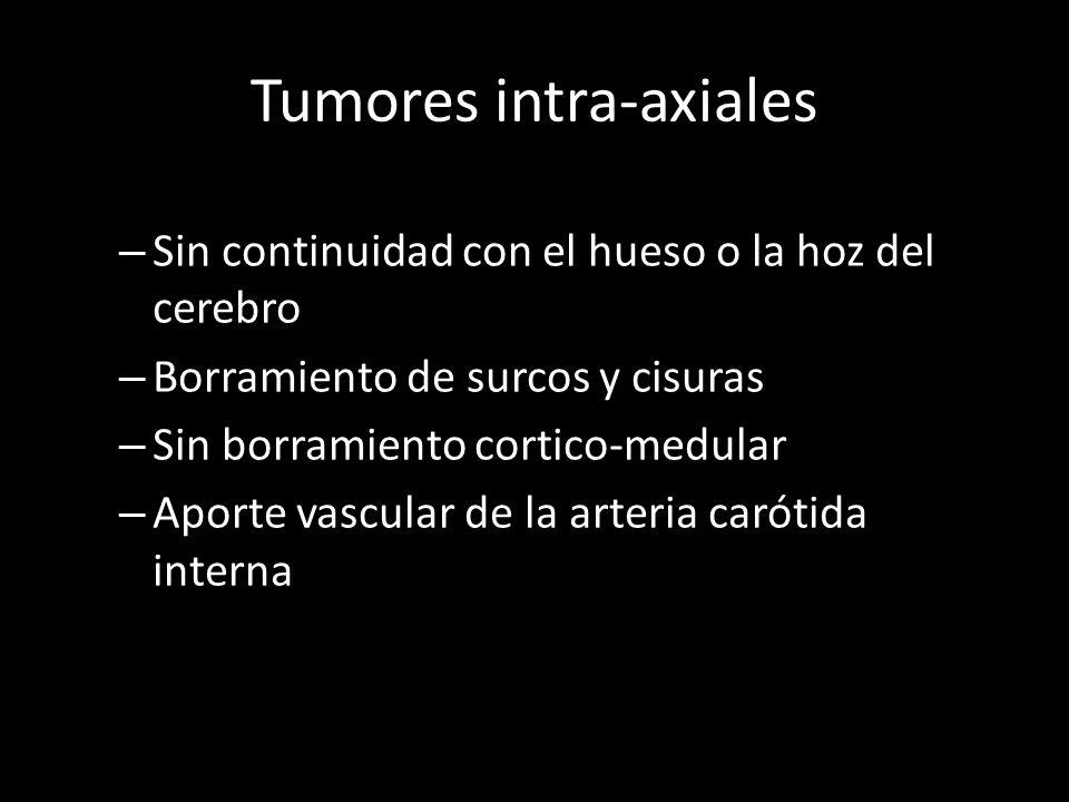 Tumores intra-axiales