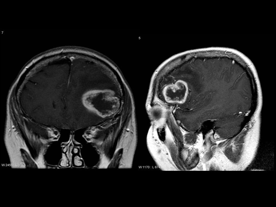 Tumor intraaxial T1+GAD glioblastoma multiforme